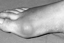 Health and Wellness – Got the Gout? Learn more